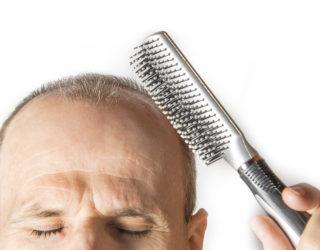 Hormonell bedingter Haarausfall bei Frau & Mann