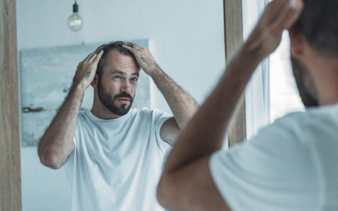 Hormoneller Haarausfall