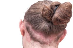 Ist Haarausfall bei Neurodermitis möglich