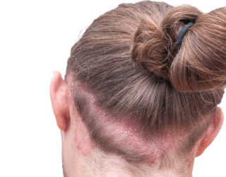 Ist Haarausfall bei Neurodermitis möglich?