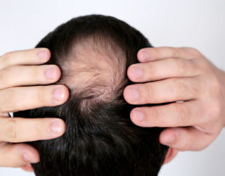 Ist Haarausfall nach Operationen möglich?