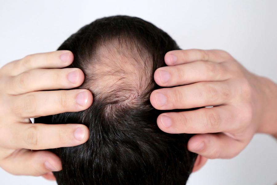 Ist Haarausfall nach Operationen möglich