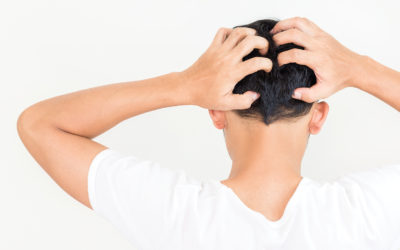 Kopfhaut Pilz – Wenn der Kopf juckt & die Haare ausfallen