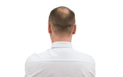 Kreisrunder Haarausfall Behandlung