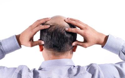 Kreisrunder Haarausfall Frauen – Ursachen & Hilfen