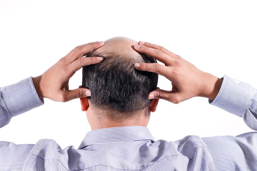 Kreisrunder Haarausfall Frauen
