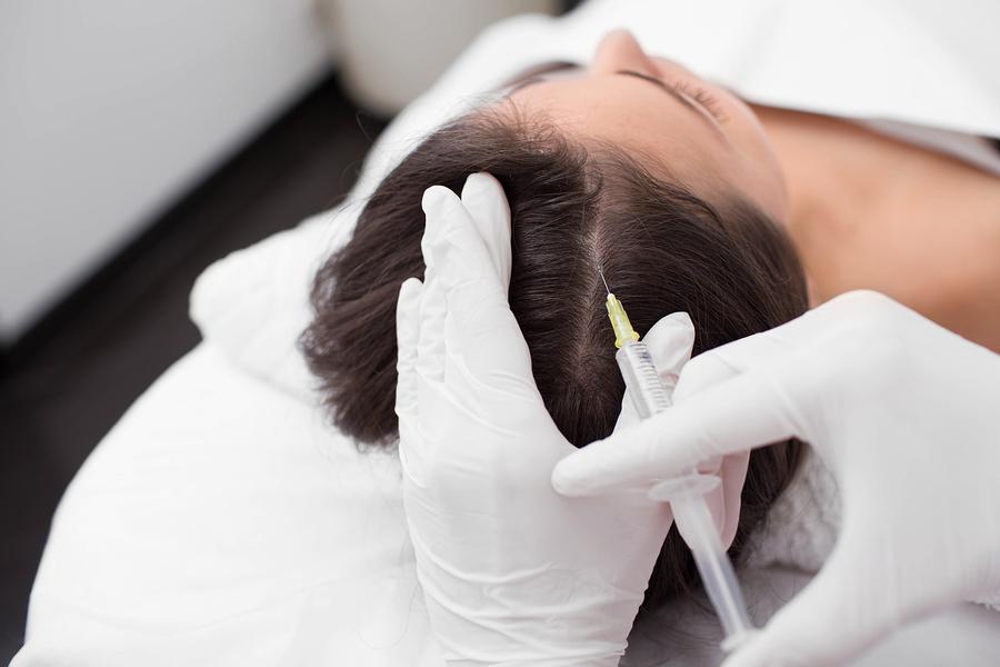Mesotherapie bei Haarausfall