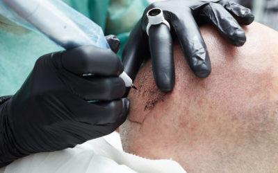 Nanohaarpigmentierung – optisch volles Haar ohne Operation