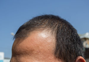 Neuer Therapieansatz Stromreize gegen Haarausfall