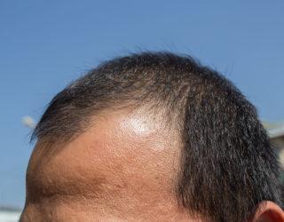 Neuer Therapieansatz: Stromreize gegen Haarausfall