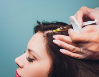 PRP – Haarausfall mit Eigenbluttherapie stoppen