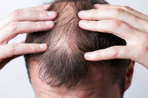 Plötzlicher Haarausfall