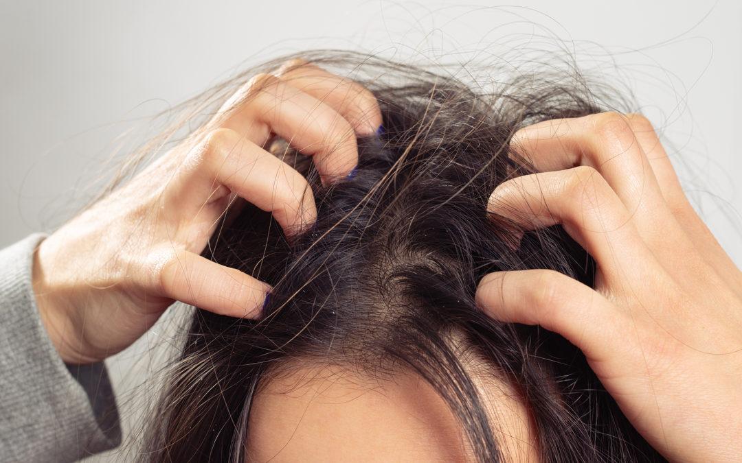 Polyzystisches Ovarialsyndrom und Haarausfall