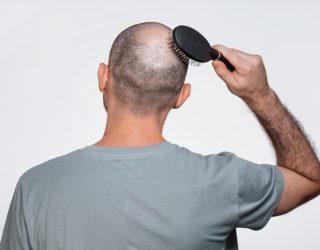 Reiztherapie bei kreisrundem Haarausfall: Das Immunsystem überlisten