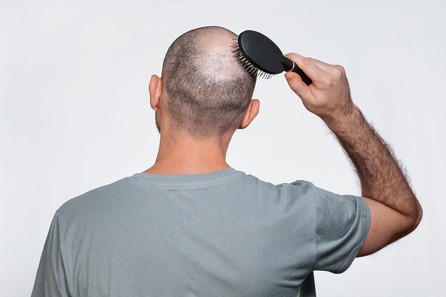 Reiztherapie bei kreisrundem Haarausfall