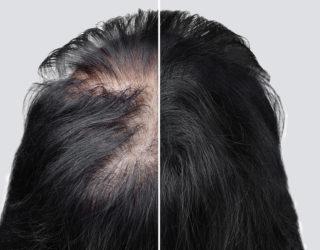 Spannungshaarausfall: Wenn sich Anspannung auf die Haare auswirkt