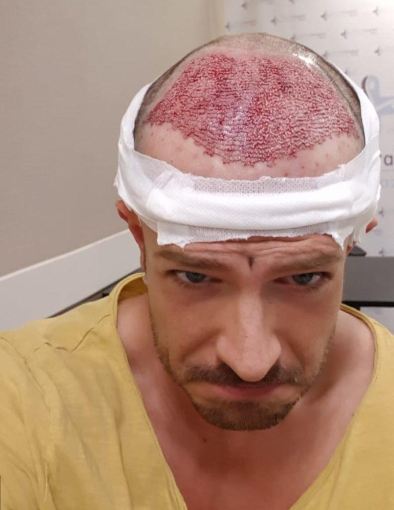 Tag der Haartransplantation in der Türkei