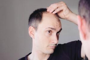 Trichoklasie Wenn das Haar extrem stark bricht