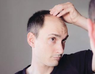 Trichoklasie: Wenn das Haar extrem stark bricht
