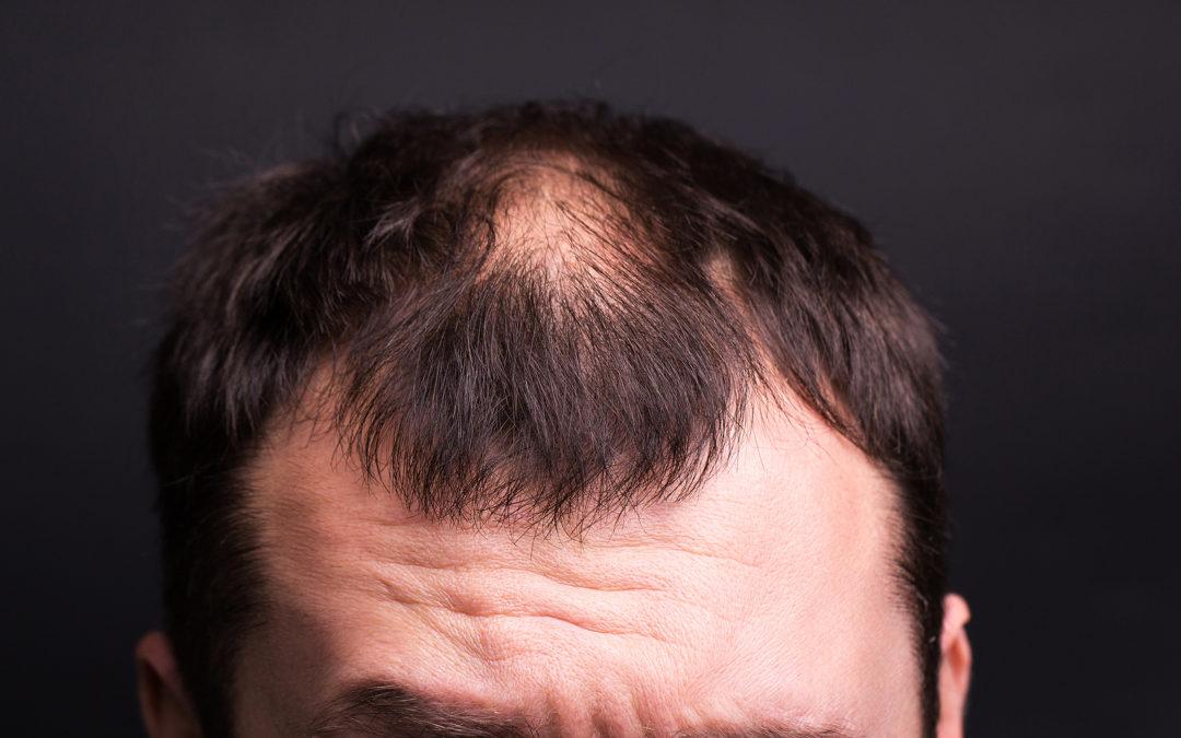 Trichorrhexis nodosa Wenn die Haarstruktur geschädigt ist