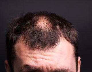 Trichorrhexis nodosa: Wenn die Haarstruktur geschädigt ist