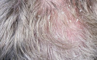 Trockene Kopfhaut für zu Haarausfall