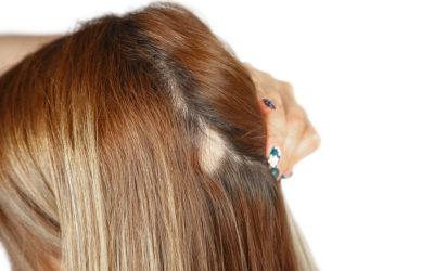 Was ist die Ursache, wenn stellenweise Haarausfall auftritt?