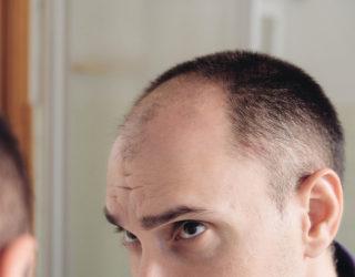 Was macht einen krankhaften Haarausfall aus?