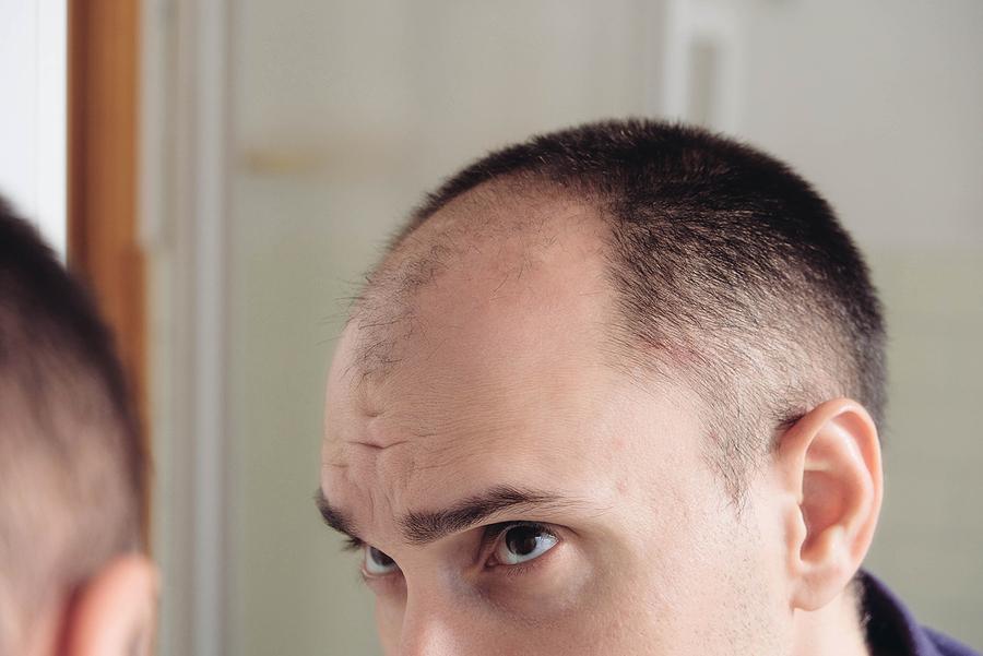 Was macht einen krankhaften Haarausfall aus