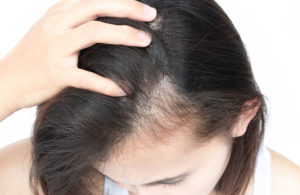 Weshalb entsteht Haarausfall am Haaransatz