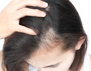 Weshalb entsteht Haarausfall am Haaransatz?