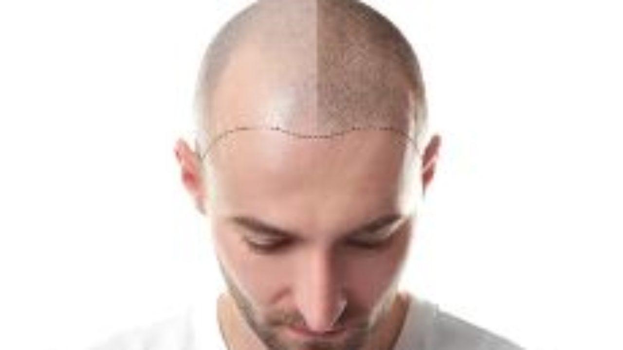 Welchen Männern Steht Eine Glatze