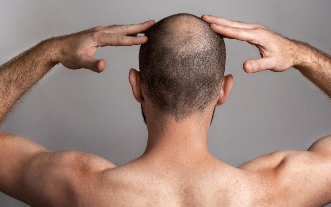 gegen haarausfall männer