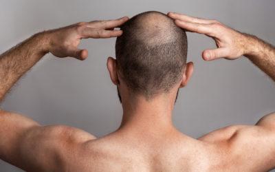 Gegen Haarausfall Männer! Auf in den Kampf