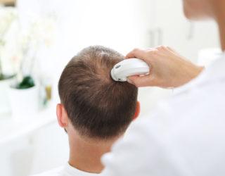 Bei Haarausfall zur Haaranalyse zum Hautarzt