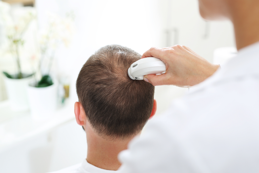 haaranalyse haarausfall