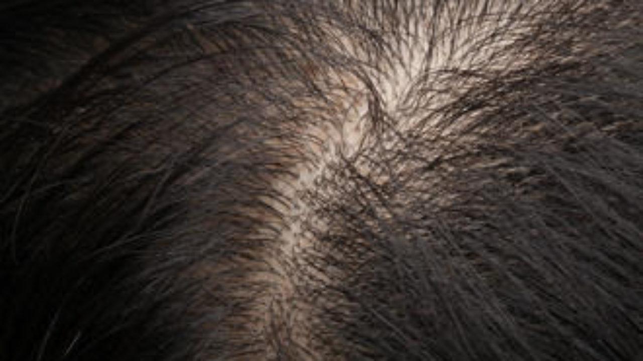 Juckende Kopfhaut und Haarausfall- Was tun gegen Juckreiz ...