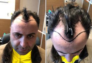 murat vor haartransplantation geheimratsecken