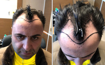 Meine Haartransplantation Istanbul Erfahrungen